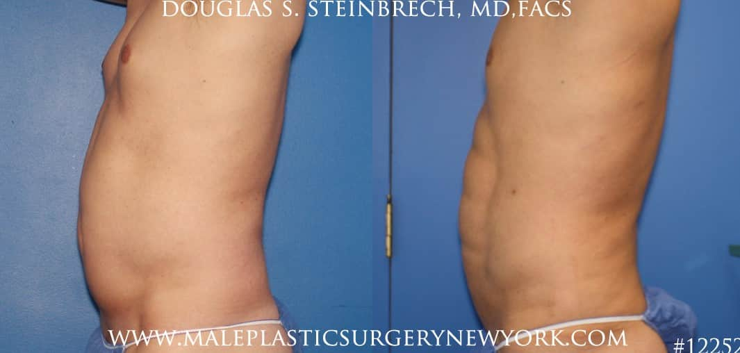 Surfer abs with liposuction by Dr. Steinbrech