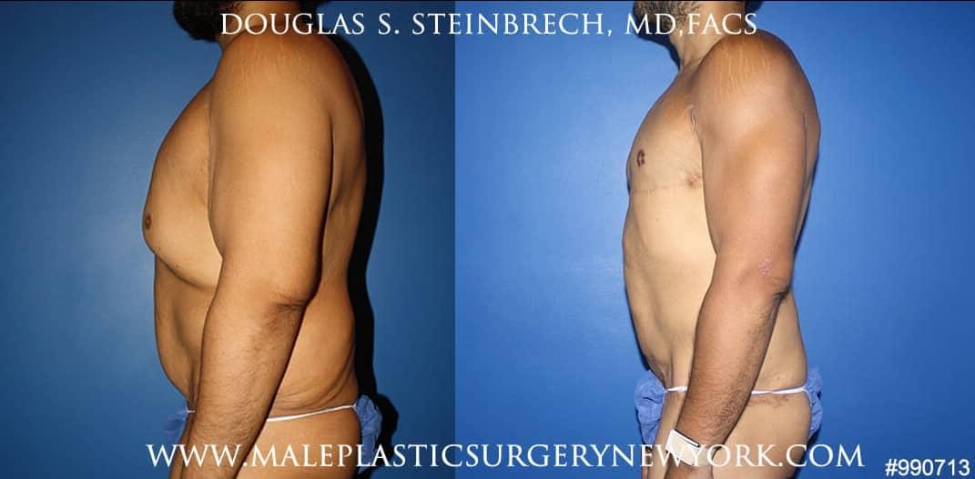 360 Torso tuck after massive weight loss by Dr. Steinbrech