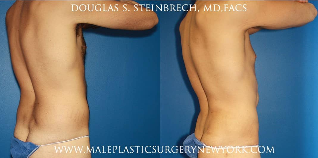 Torso tuck and liposuction for body sculpting by Dr. Steinbrech