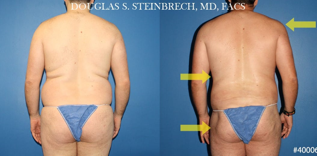 Torso tuck with body banking to reduce midsection by Dr. Steinbrech
