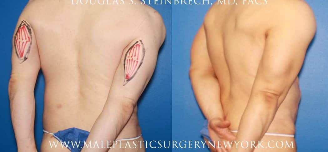 Tricep implants for upper arm augmentation by Dr. Steinbrech