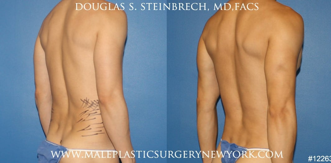 Body banking to create surfer abs and sculpt the back and waistline by Dr. Steinbrech