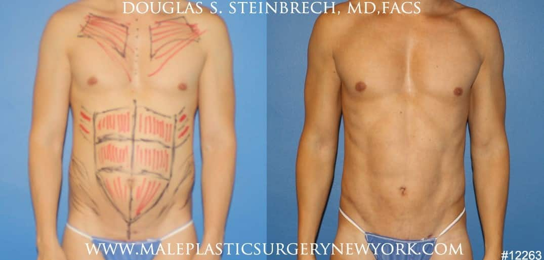 Body banking to create surfer abs and sculpt the upper body by Dr. Steinbrech
