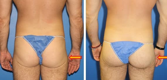 Gluteal augmentation using implants by Dr. Steinbrech
