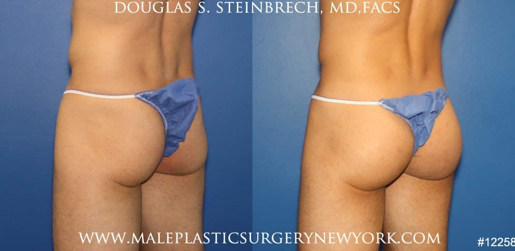 Gluteal implants for buttock enhancement by Dr. Steinbrech