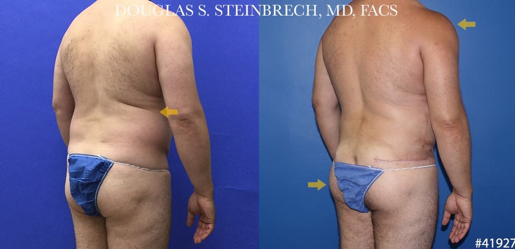 270 Torso tuck with body banking for contouring by Dr. Steinbrech