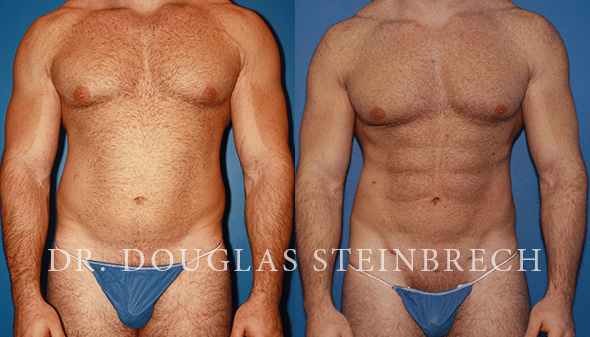 abs body contouring in new york