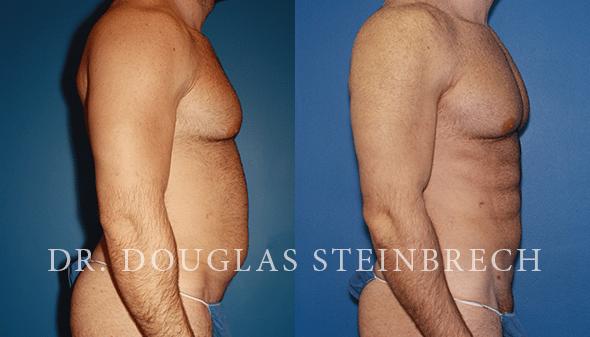 liposuction for men in new york