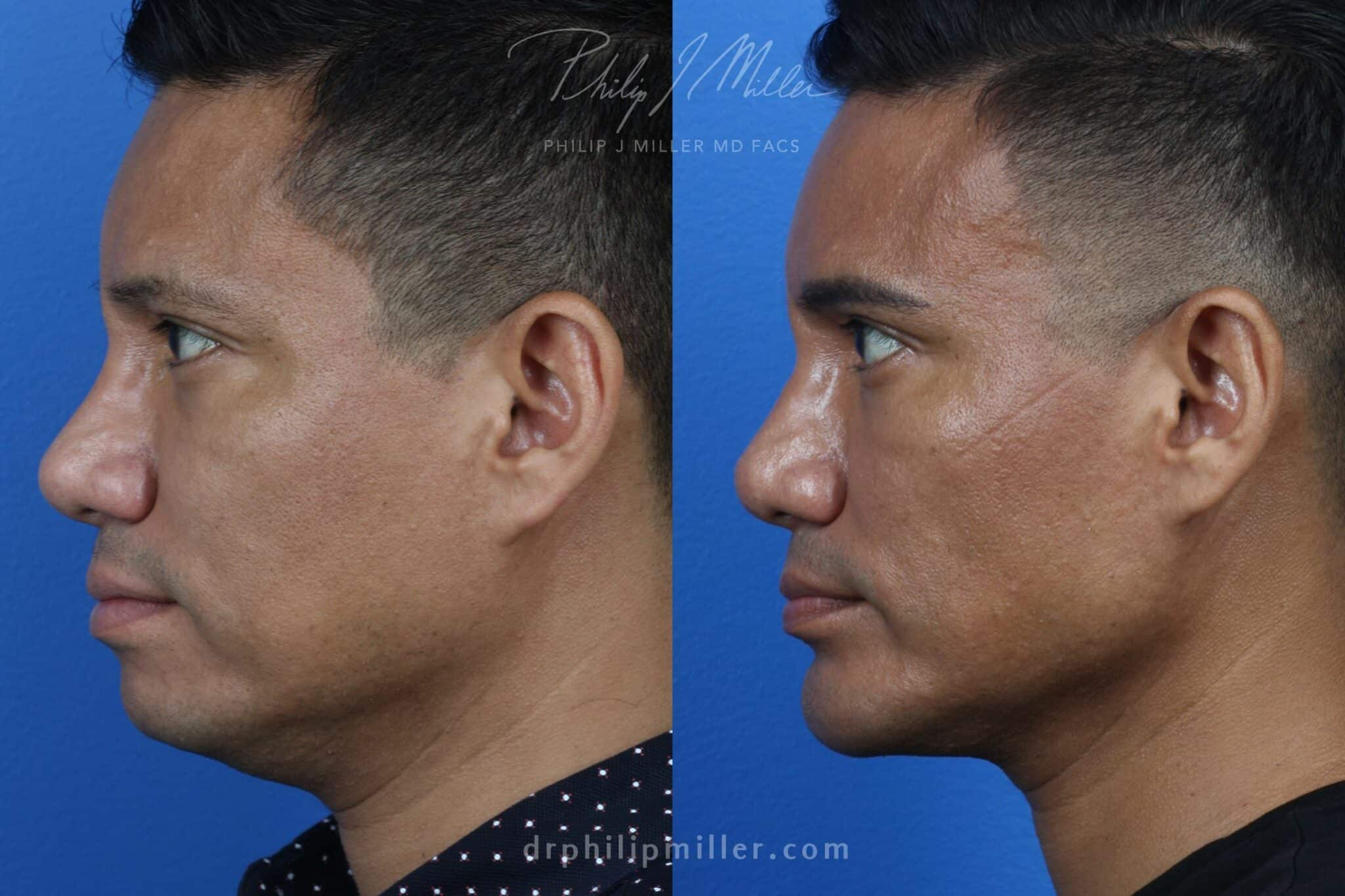 Neck-Tite and Liposuction to Contour the Neck by Dr. Miller