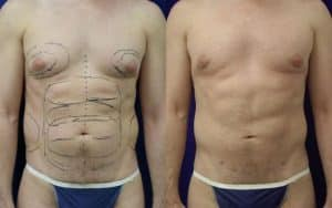 liposuction body contouring plastic surgery results in new york