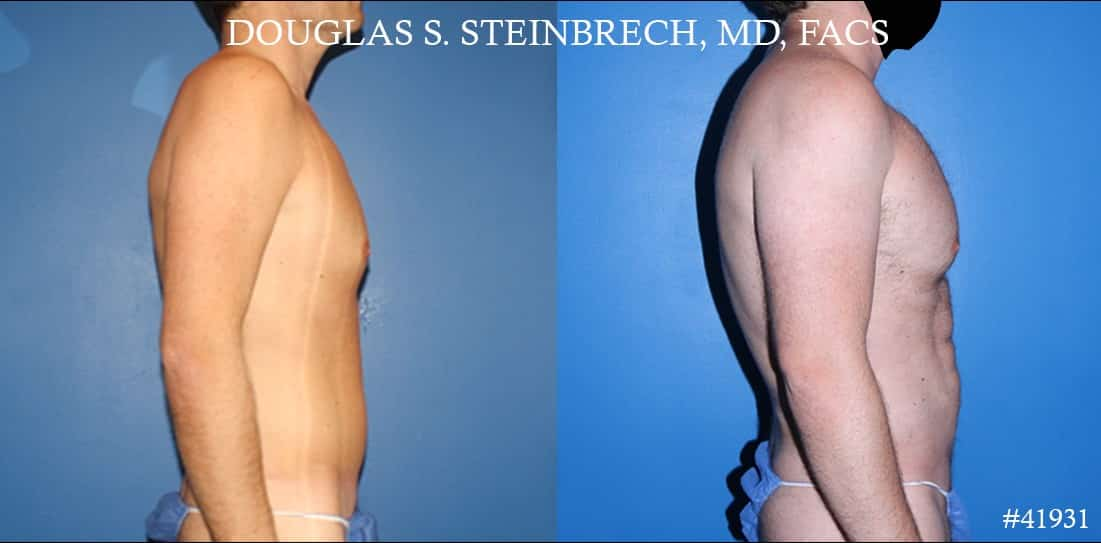Body banking with fat transfer by Dr. Steinbrech