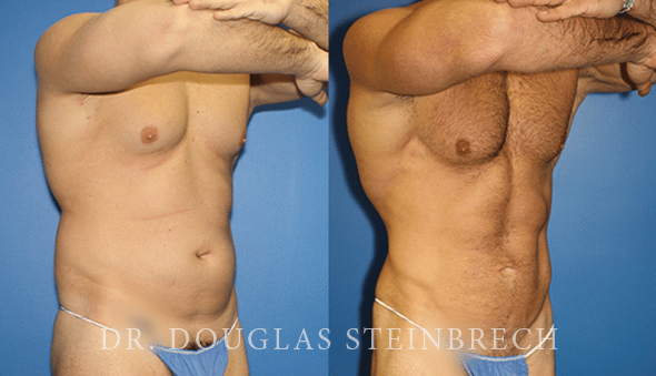 body banking ab contouring surgery in new york