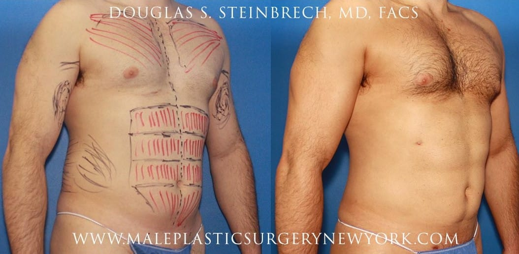 body banking male body contouring procedure in new york