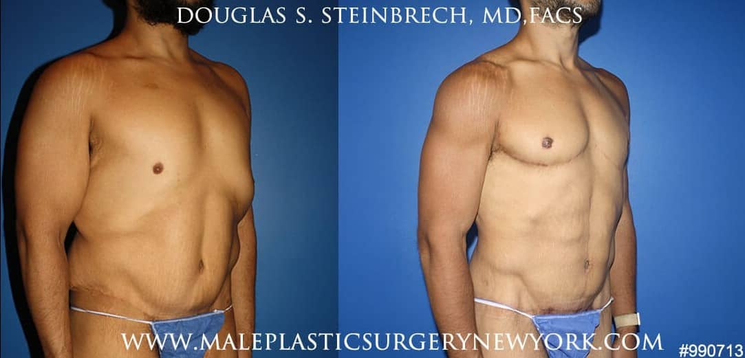 body banking male plastic surgery in new york