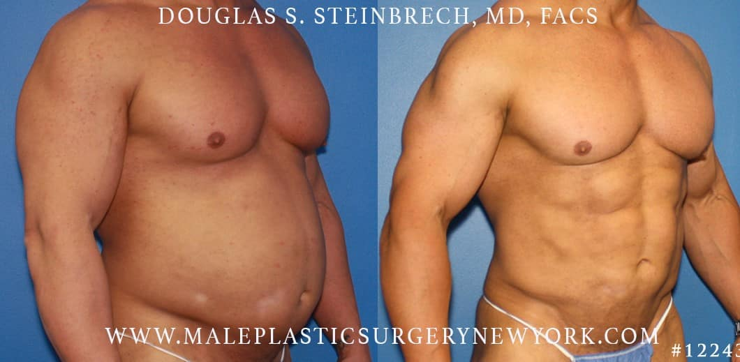 ab contouring plastic surgery results in new york