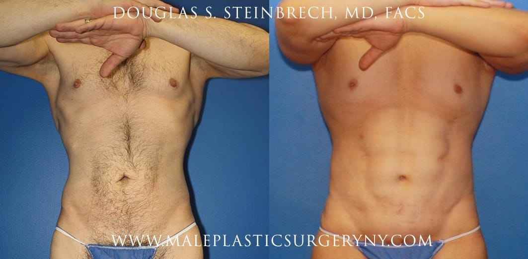 body sculpting before and after in new york
