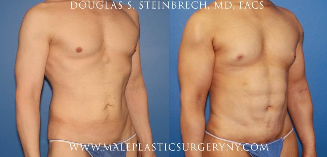 body lift before and after in new york