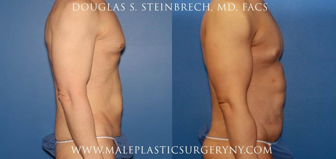 body lift sculpting before and after in new york