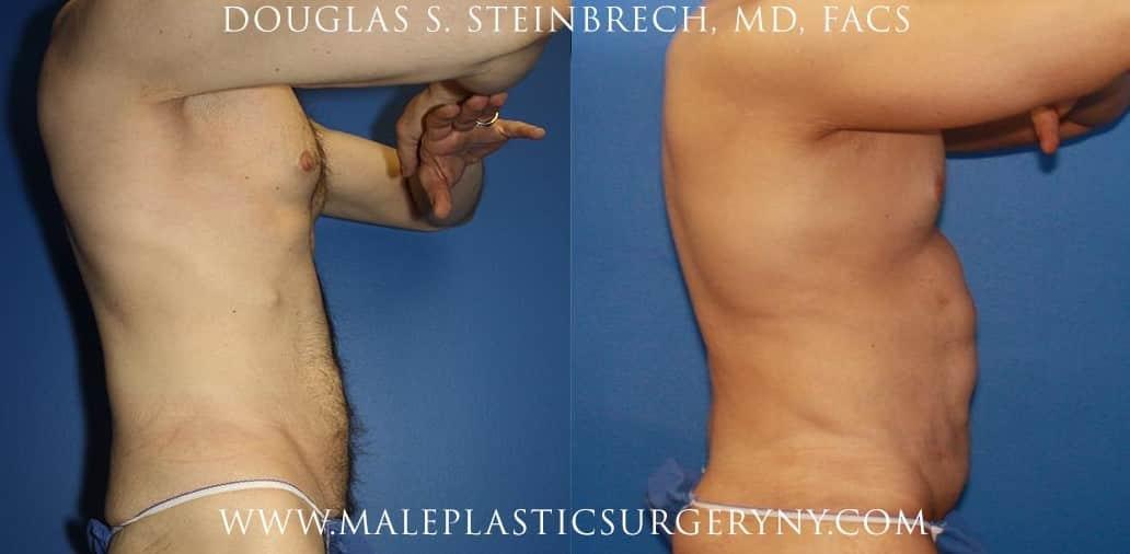 body lift body contouring procedure in new york
