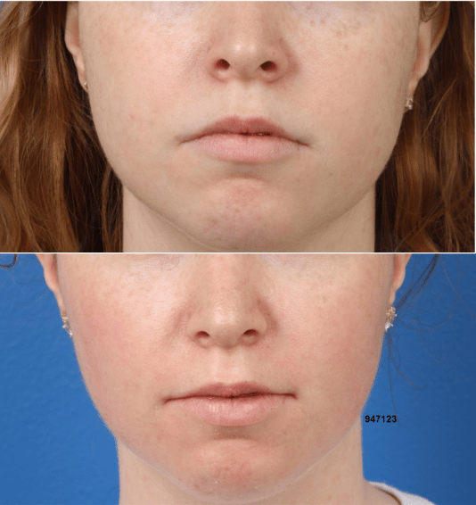 buccal fat excision before and after in new york