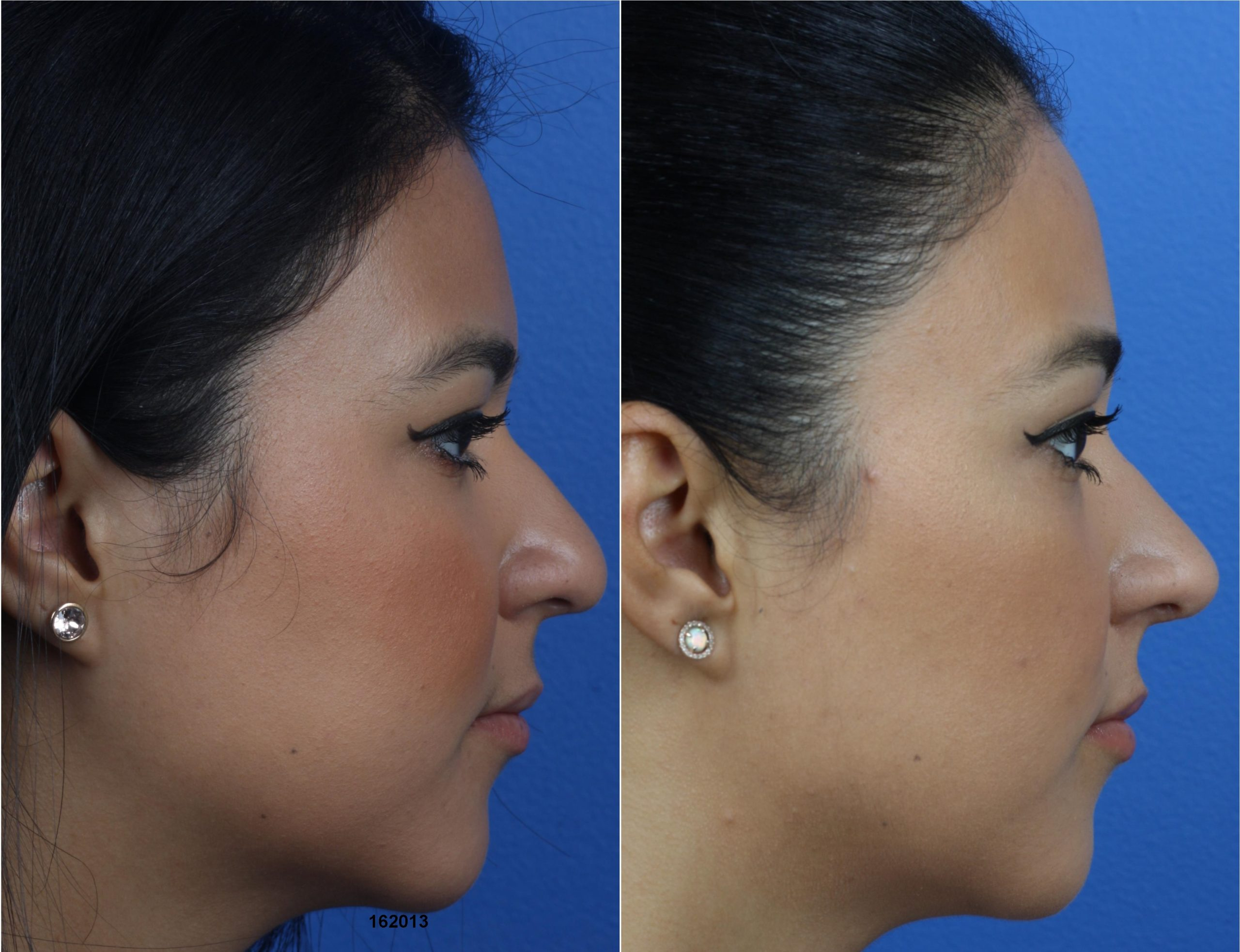 buccal fat excision procedure in new york