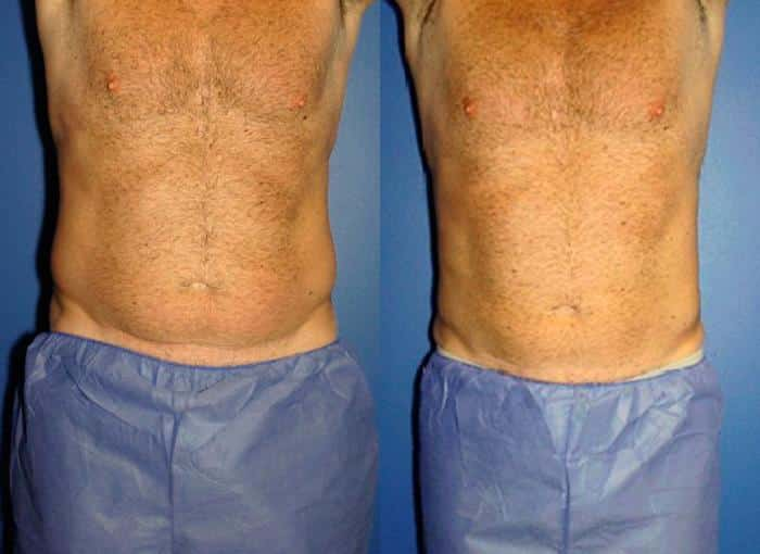 coolsculpting body contouring before and after in new york