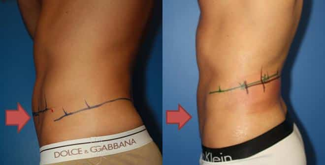coolsculpting stubborn fat removal in new york