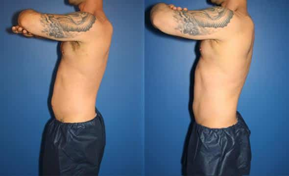 coolsculpting body contouring in new york