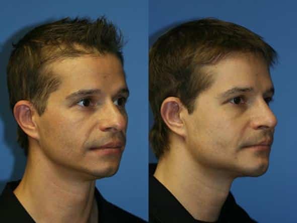 jawline contouring plastic surgery in new york