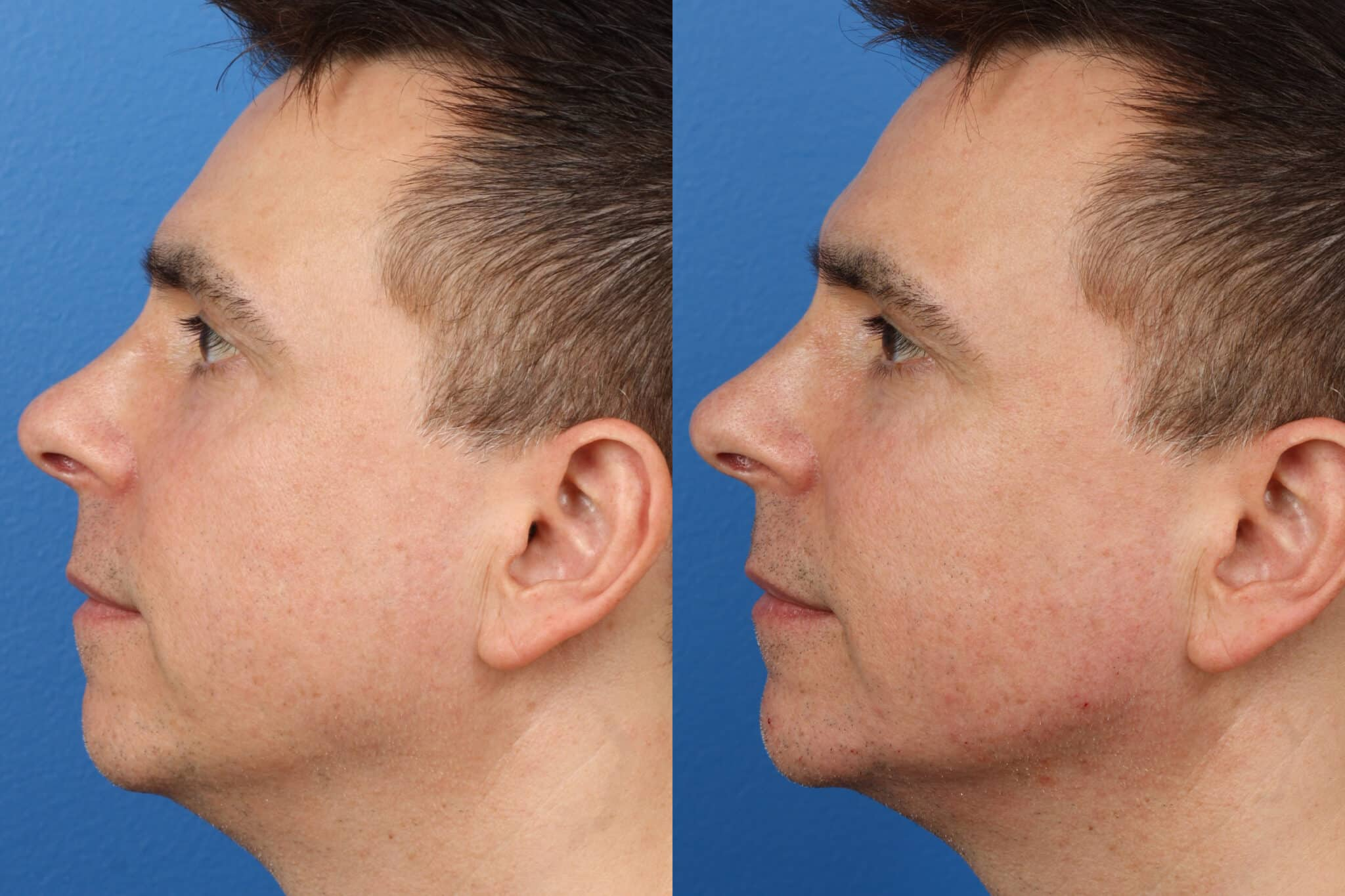 jaw contouring before and after in new york