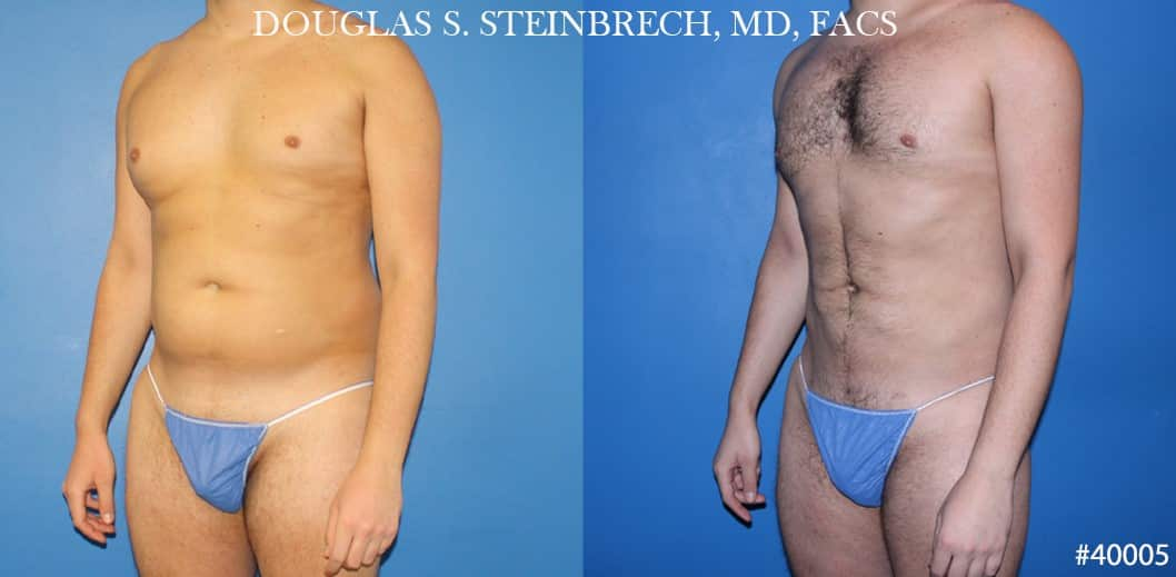 liposuction ab sculpting in new york