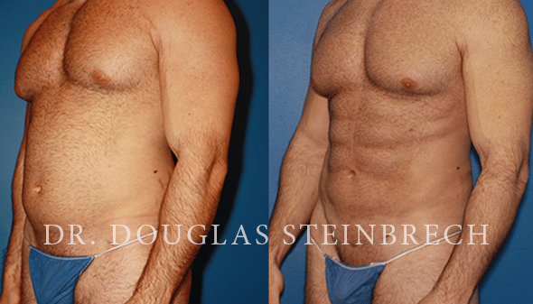 liposuction body contouring surgery in new york
