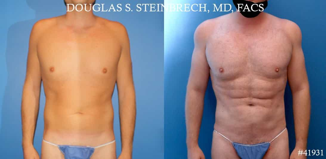 liposuction body plastic surgery in new york