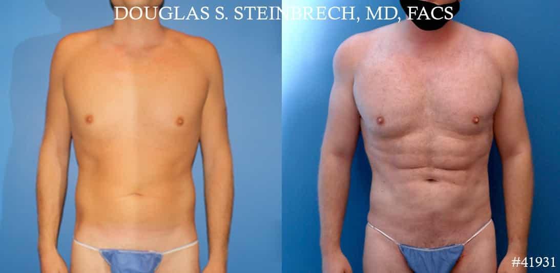 liposuction body plastic surgery in new york