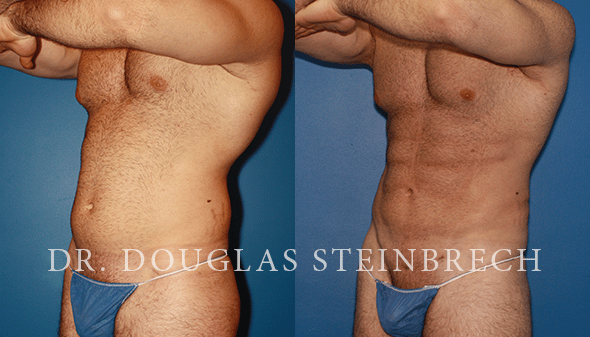 liposuction body sculpting plastic surgery in new york