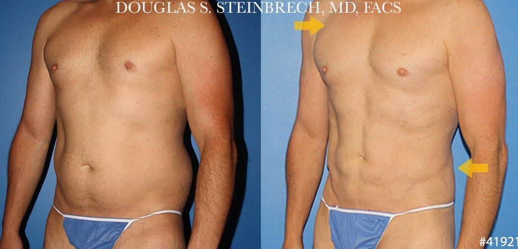 liposuctino plastic surgery in new york