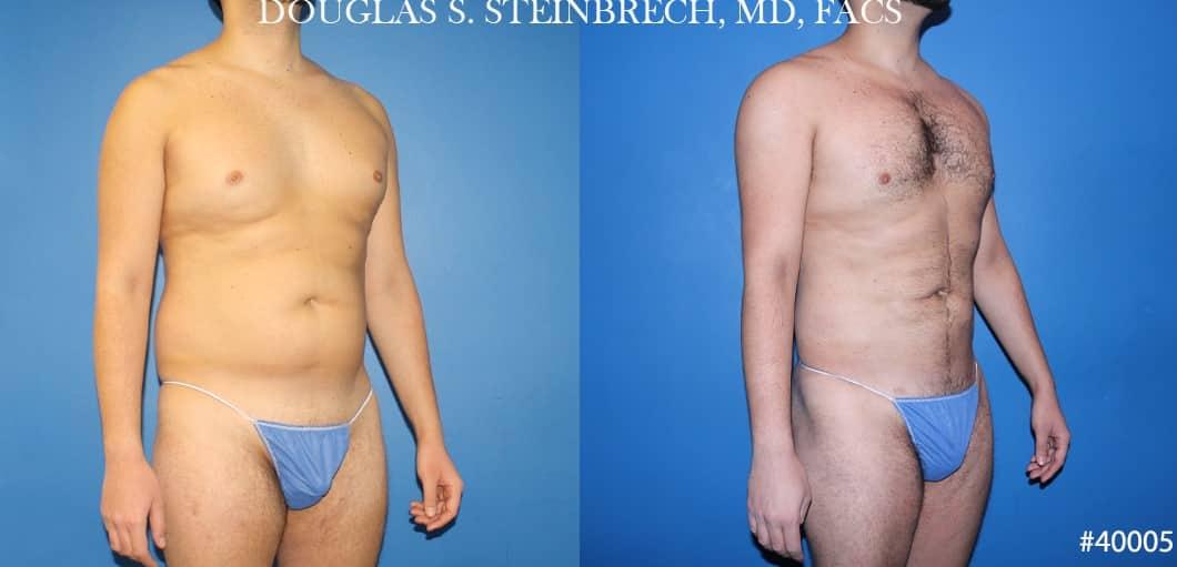 liposuction torso body sculpting in new york