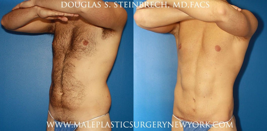 liposuction body and torso contouring in new york