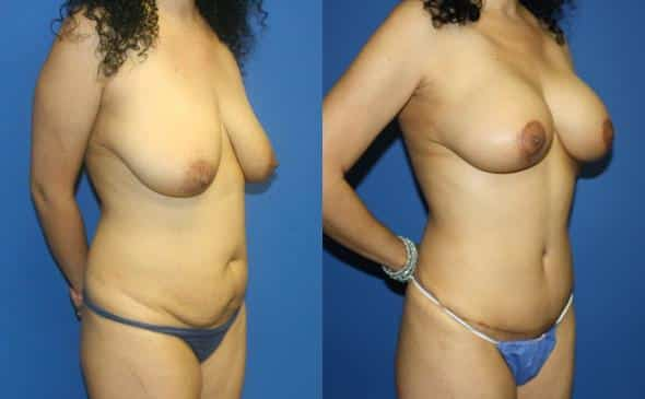 mommy makeover plastic surgery in new york