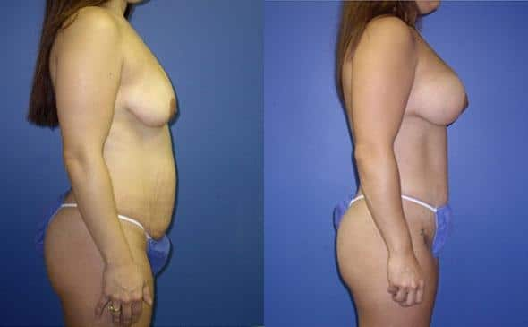 mommy makeover breast lift surgery in new york