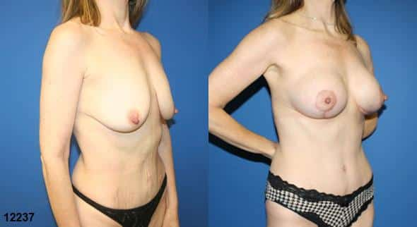 mommy makeover plastic surgery patient in new york