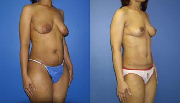 mommy makeover breast plastic surgery in new york