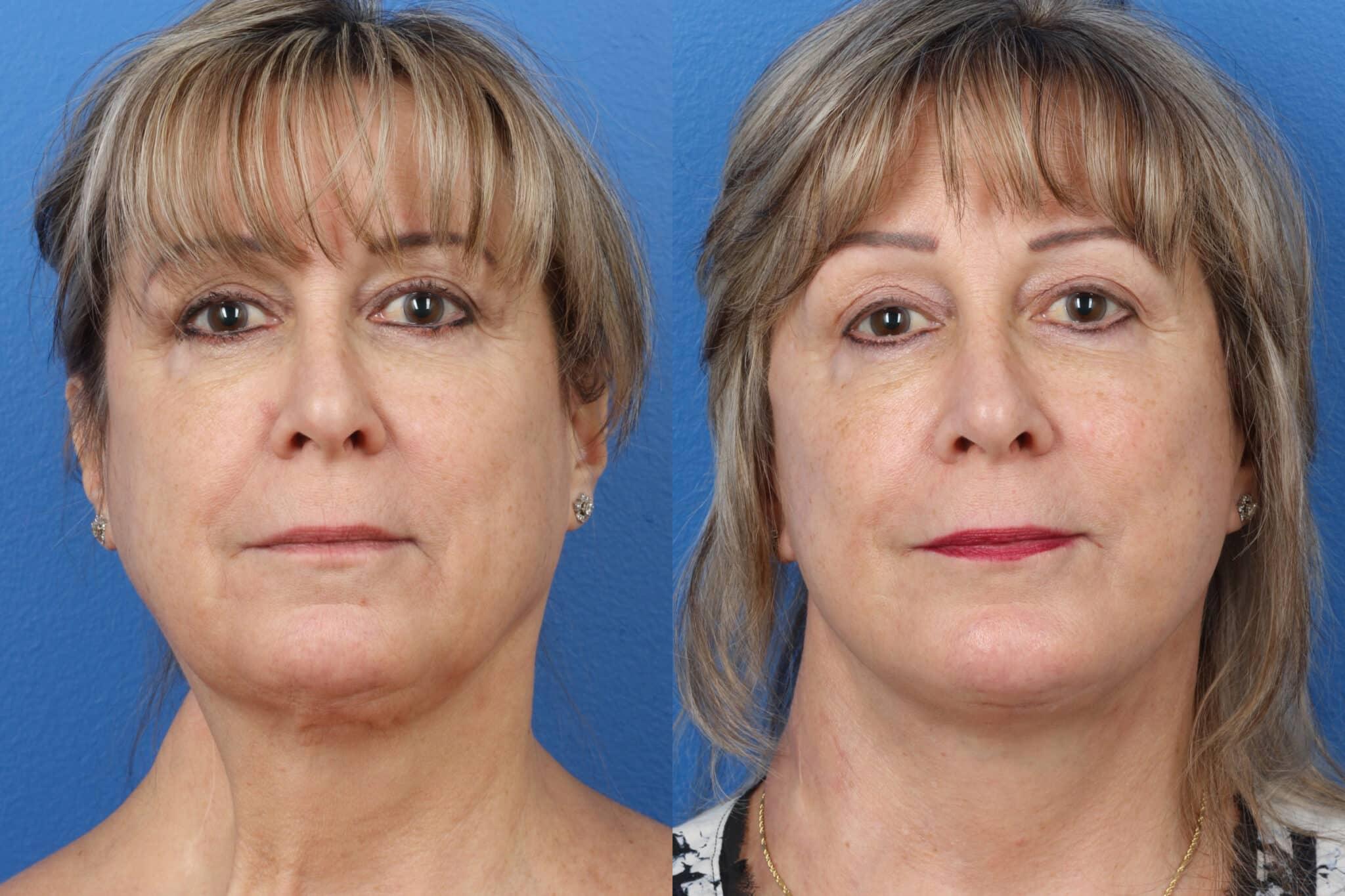 neck reconstructive plastic surgery in new york