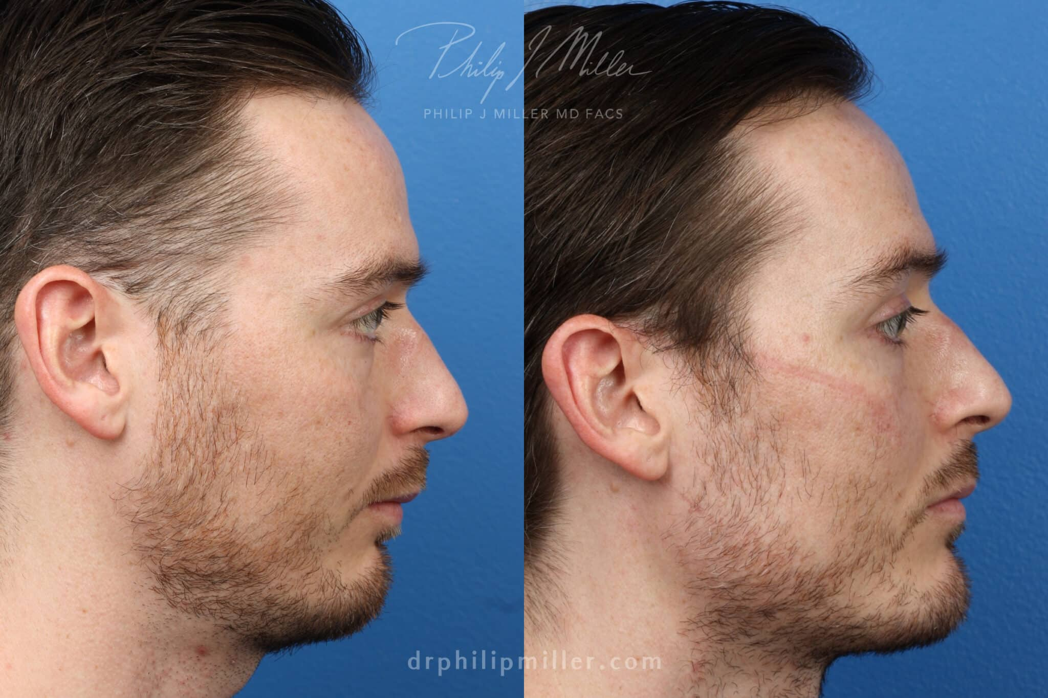 Chin implant to strengthen chin by Dr. Miller