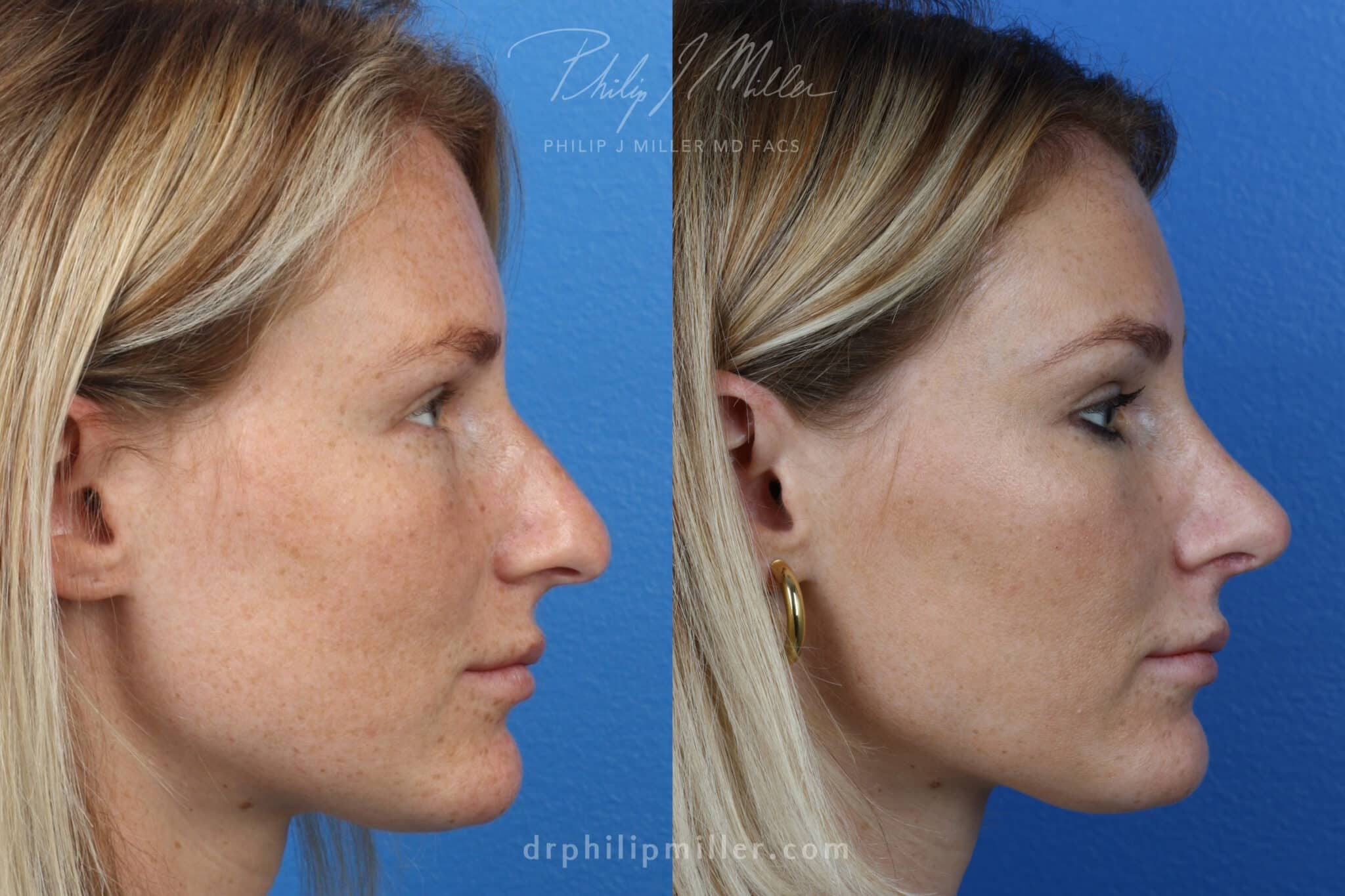 Rhinoplasty to correct the nasal bridge and tip by Dr. Miller