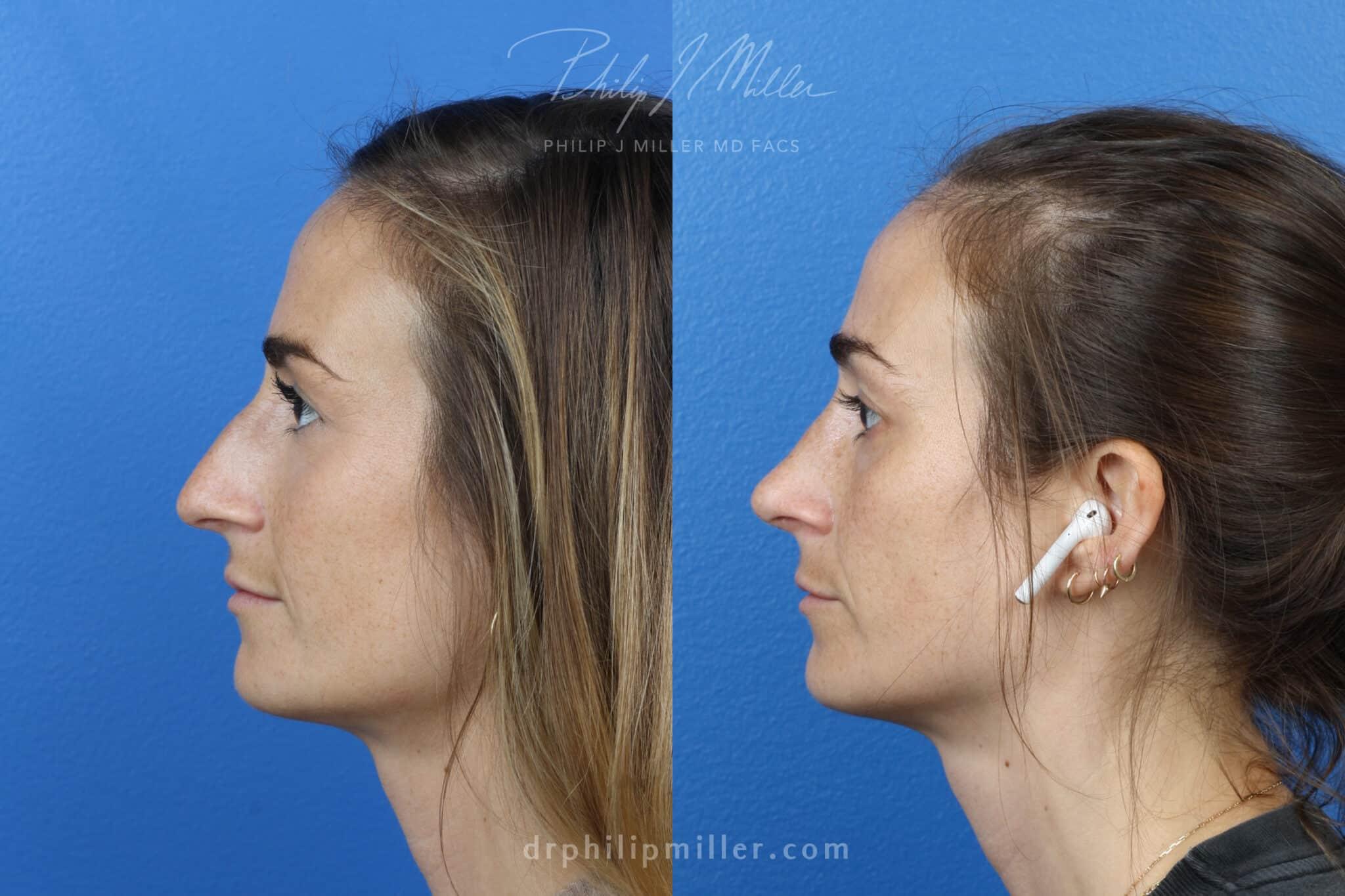 Rhinoplasty Left to correct nasal bridge female Miller