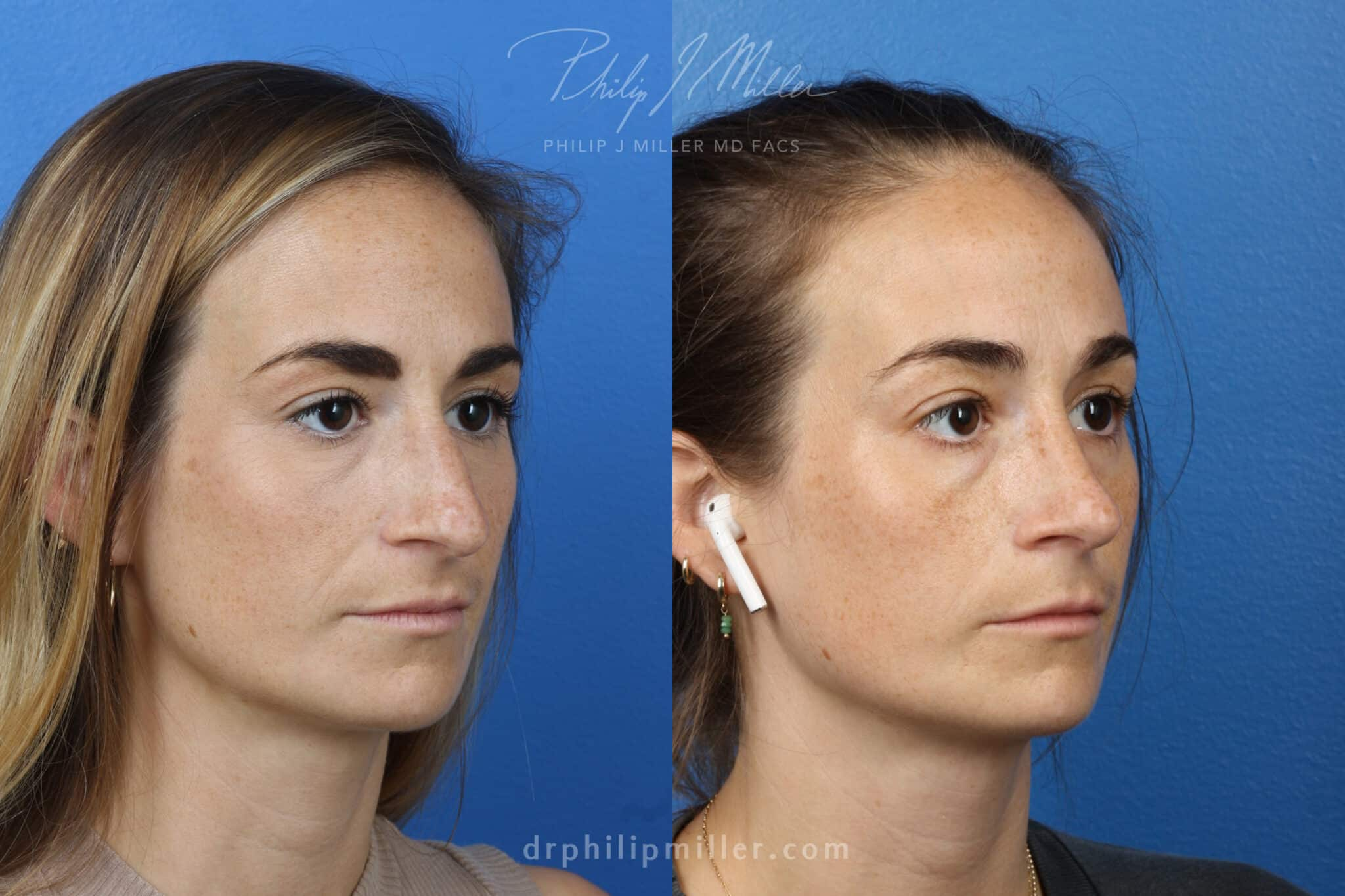 Rhinoplasty-to-correct-nasal-bridge-female-Miller