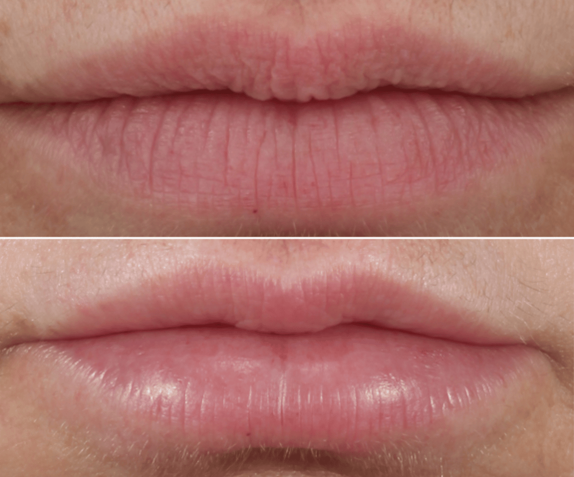 restylane lip filler before and after in new york