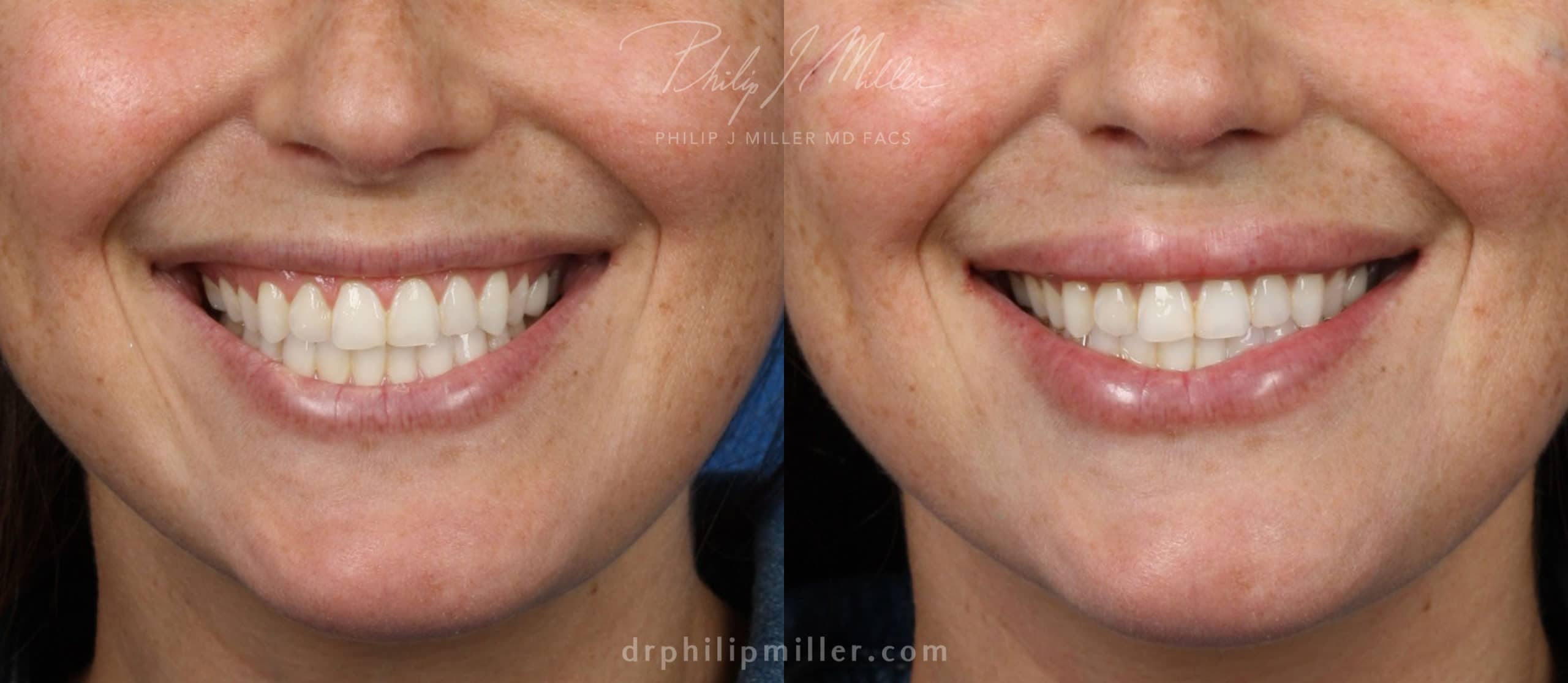 Lip filler to plump up the lips by Dr. Miller