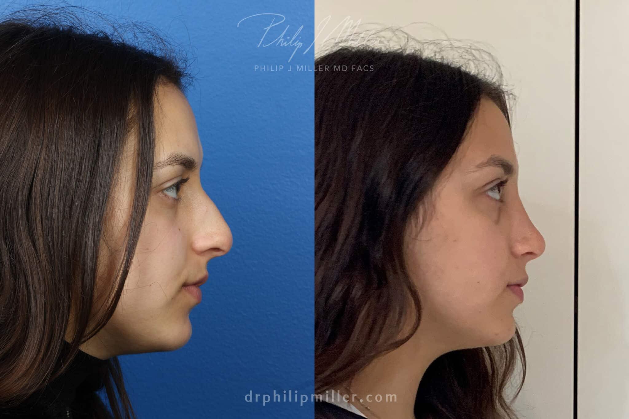 Rhinoplasty to straighten bridge and refine nasal tip by Dr. Miller